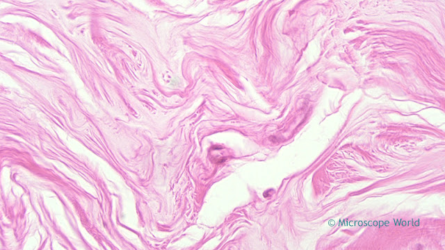 Micrscopy image of mammargy gland for breast cancer awareness month.