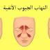 وصفة منزلية لتخفيف التهاب الجيوب الأنفية بمكونات طبيعية بسيطة