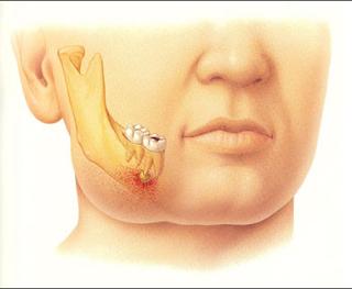 http://www.pusatmedik.org/2015/11/pengertian-dan-definisi-abses-gigi-dalam-ilmu-kedokteran.html