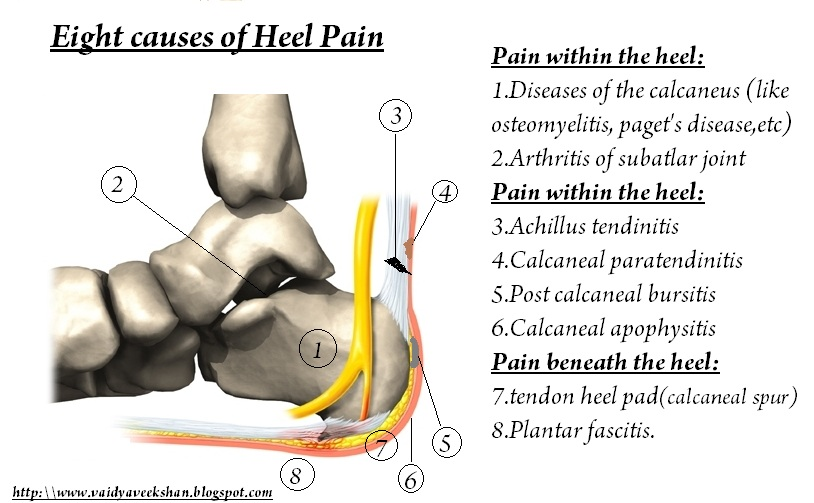 bacf74f8ab cause of these three types of pain are different.while a patient coming  with a pain over heel,then should understand the exact location and cause,  ...