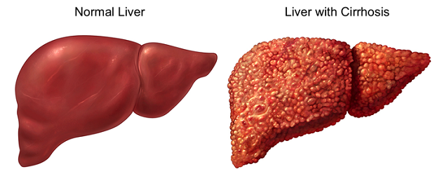 Liver Cancer Treatment in Kochi