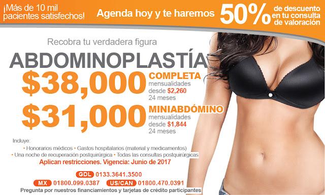 Precio de abdominoplastia Guadalajara vientre plano