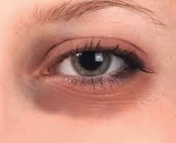10 Ways to Remove Wrinkles under the eyes in Natural and Fast