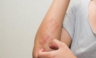 3 Jenis Alergi,Penyebab,Gejala Dan Langkah Perawatannya