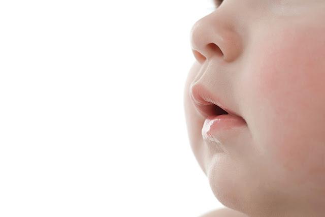 punca hidung berdarah dan cara mengubatinya