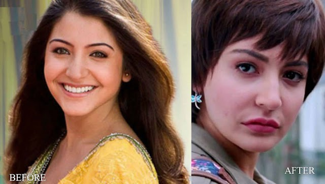 Plastic Surgery in Bollywood
