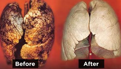Tips membersihkan paru-paru dari racun