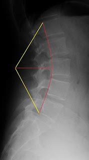 脊椎滑脫, 腰酸治療, 脊椎矯正, 脊椎側彎矯正運動