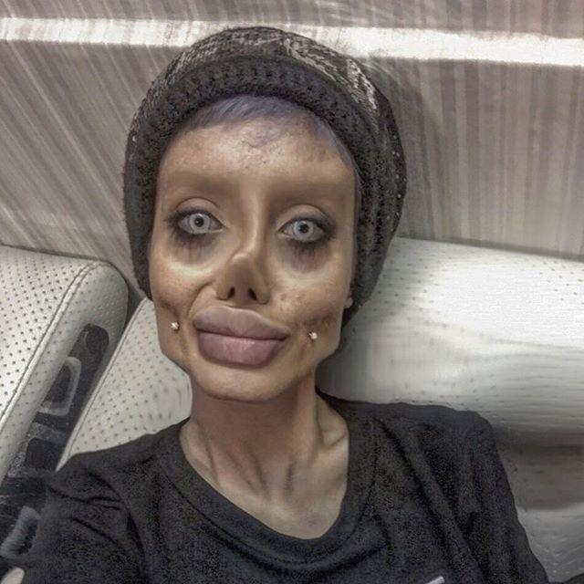 Se operó para parecerse a Angelina Jolie y terminó mal