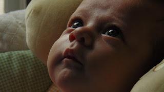 angin ahmar Pada Anak (Bayi)