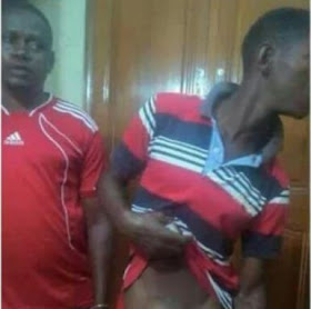 Man's Buttocks Relocates To The Front After Sleeping With Someone's Wife [Photos]
