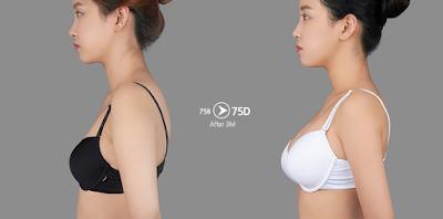 sebelum dan sesudah operasi payudara implan bulat 02