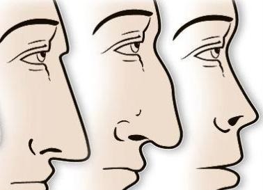 Kenapa hidung orang Indonesia pesek