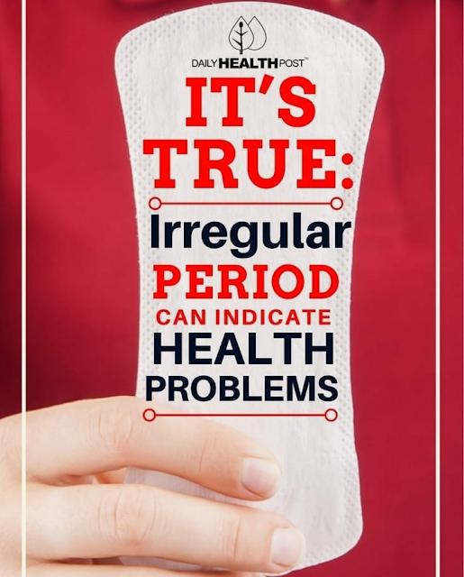 Irregularities in periods, irregular periods