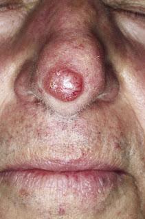 karsinoma-sel-basal-tipe-nodular