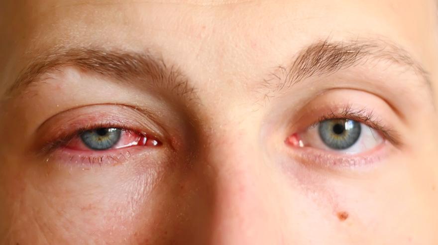 Komplikasi Mata Uveitis