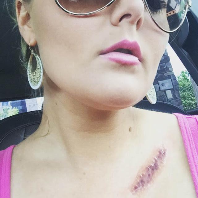 سرطان الجلد سرطان الثدي