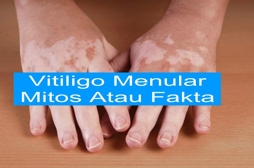 Penularan Penyakit Vitiligo Mitos Atau Fakta