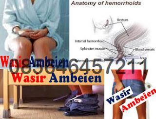 Wasir (Hemorrhoid) Banyak Diderita Orang Dewasa