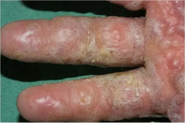 Những nguyên nhân gây bệnh tổ đỉa và chia sẻ phương pháp phòng ngừa bệnh