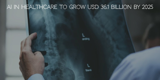 AI in Healthcare to Grow USD 36.1 billion by 2025