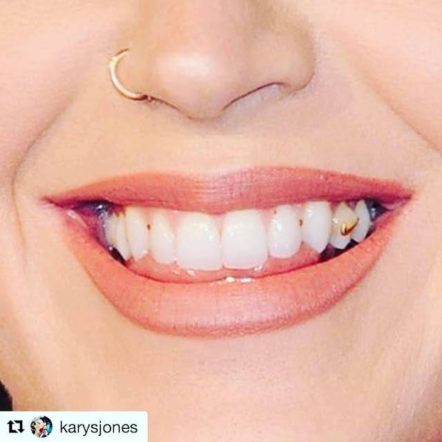 Katy-Perry-teeth-pic-on-her-Instagram