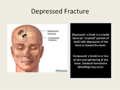 Depressed  fracture,Definition of Depressed fracture,fracture first aid