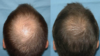 11 Effective Home Remedies for Baldness