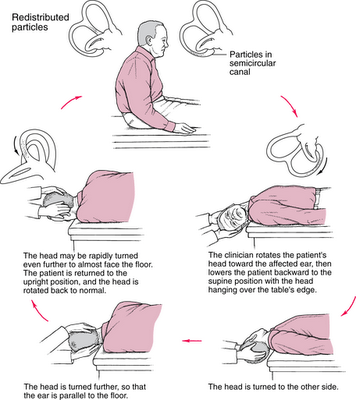 posisi tidur untuk orang vertigo