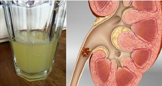Drinking Only Half A Glass Of This Drink Will Completely Dissolve Your Kidney Stones