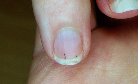 Splinter Haemorrhages Under The Fingernail