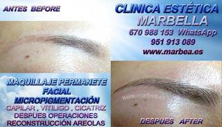 MICROPIGMENTACIÓN ALMERIA CLÍNICA ESTÉTICA: Te ofrecemos la alta calidad de servicios, con los mejores expertos en micropigmentación y maquillaje permanente en Marbella o Almeria