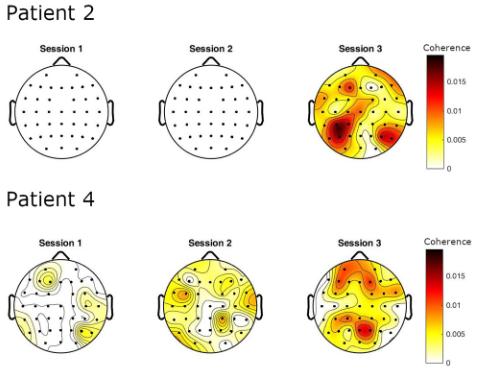 図:脳波筋電図コヒーレンス