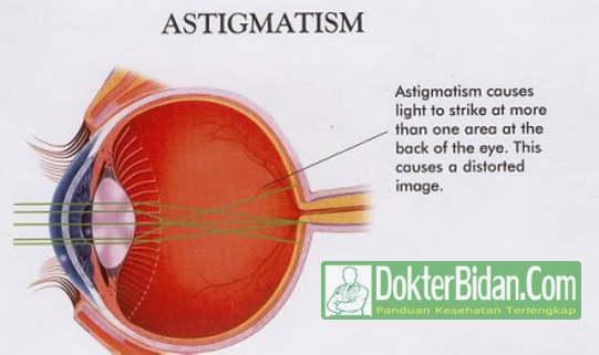 Astigmatisme Mata Silindris - Penyebab Gejala dan Cara Pengobatan Alami Atau Modern