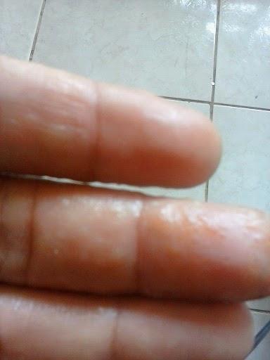 Granos en los dedos dela mano que pican