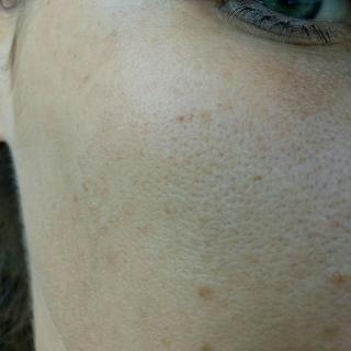 грязная кожа до спа