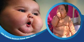 Katı Gıdalarla Beslenen Bebek Obez Oluyor