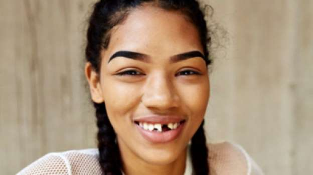 Model responds to a nasty meme making fun of her teeth
