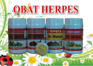 Cara mengatasi herpes agar cepat kering