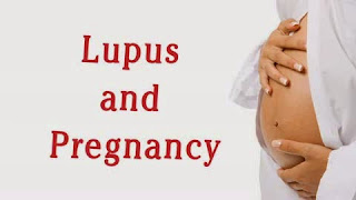 You Are Pregnant and Have Lupus Or RA