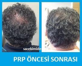 prp saç tedavisi yaptıranlar 6