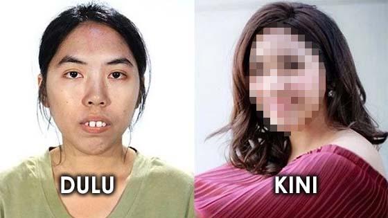 Gadis Jongos Kini Bangga Dengan Penampilannya