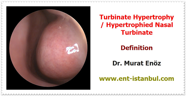 Turbinate Hypertrophy Definition - Turbinate Hypertrophy Symptoms - Causes of Turbinate Hypertrophy - Diagnosis of Turbinate Hypertrophy - Medical Treatment Options For Turbinate Hypertrophy -  Turbinate Surgery (Turbinate Resection) - Radiofrequency Turbinate Reduction - Coblation Turbinate Reduction - Radiofrequency Ablation of Hypertrophied Nasal Turbinates - Radiofrequency Turbinate Reduction in Istanbul, Turkey