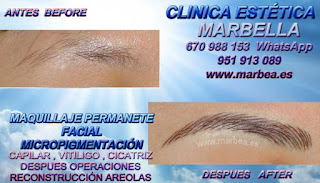 micropigmentación cejas en Huelva Clínica Estética Maquillaje Permanente Facial, Micropigmentación Capilar y micropigmentación cejas en Huelva y Marbella: Te ofrecemos la mayor calidad de nuestroservicio con los mejores profesionales en micropigmentación capilar y micropigmentación cejas
