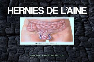 HERNIES DE L'AINE .pdf