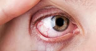 pengobatan tradisional mata kering