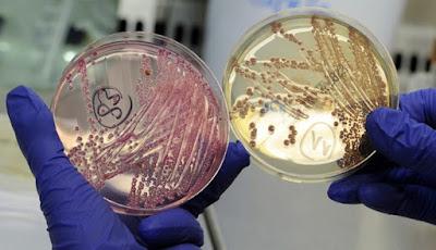 Waspada, Ancaman Bakteri Bermutasi Dari Luar Angkasa, Klaim Ilmuwan