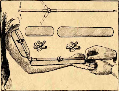 Verstellbare Schiene für Knochenbrüche
