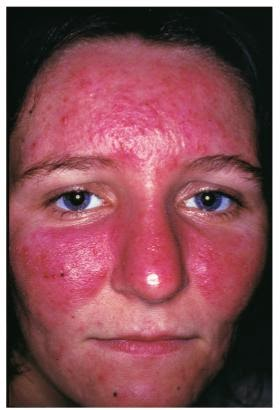 scarlet letters dealing with vascular rosacea face