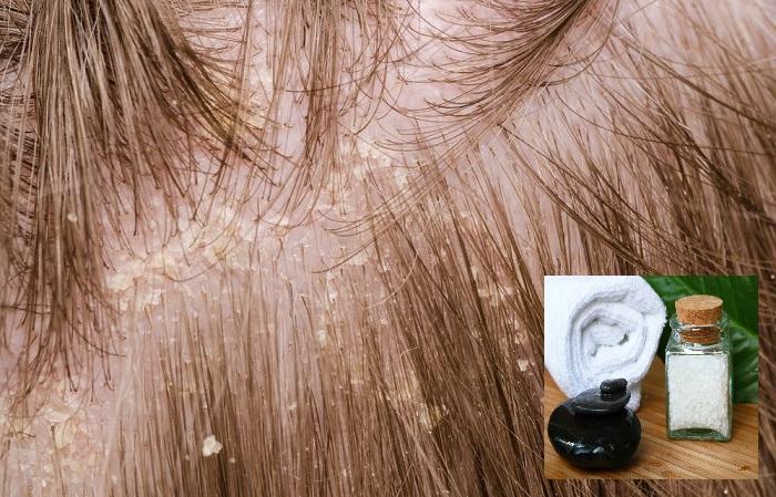 comment éliminer les pellicules dans les cheveux